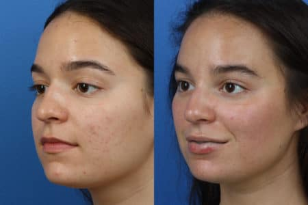 Rhinoplasty to Remove Hump from Nasal Bridge by Dr. Miller