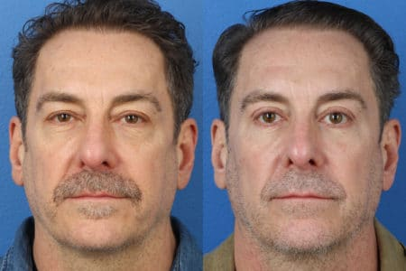 Upper and Lower Blepharoplasty to Rejuvenate Eyes by Dr. Miller