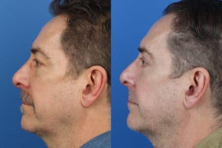 Upper and Lower Blepharoplasty to Rejuvenate Eyes by Dr. Miller