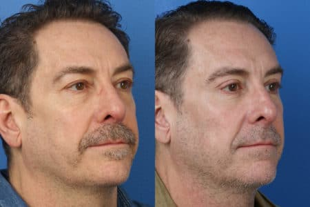 Upper and Lower Blepharoplasty to Refresh Eyes and Reduce Bags by Dr. Miller