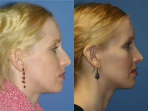 chin augmentation surgery before and after results new york