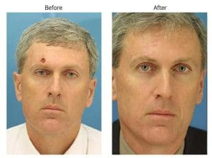 facial reconstruction surgery results in new york
