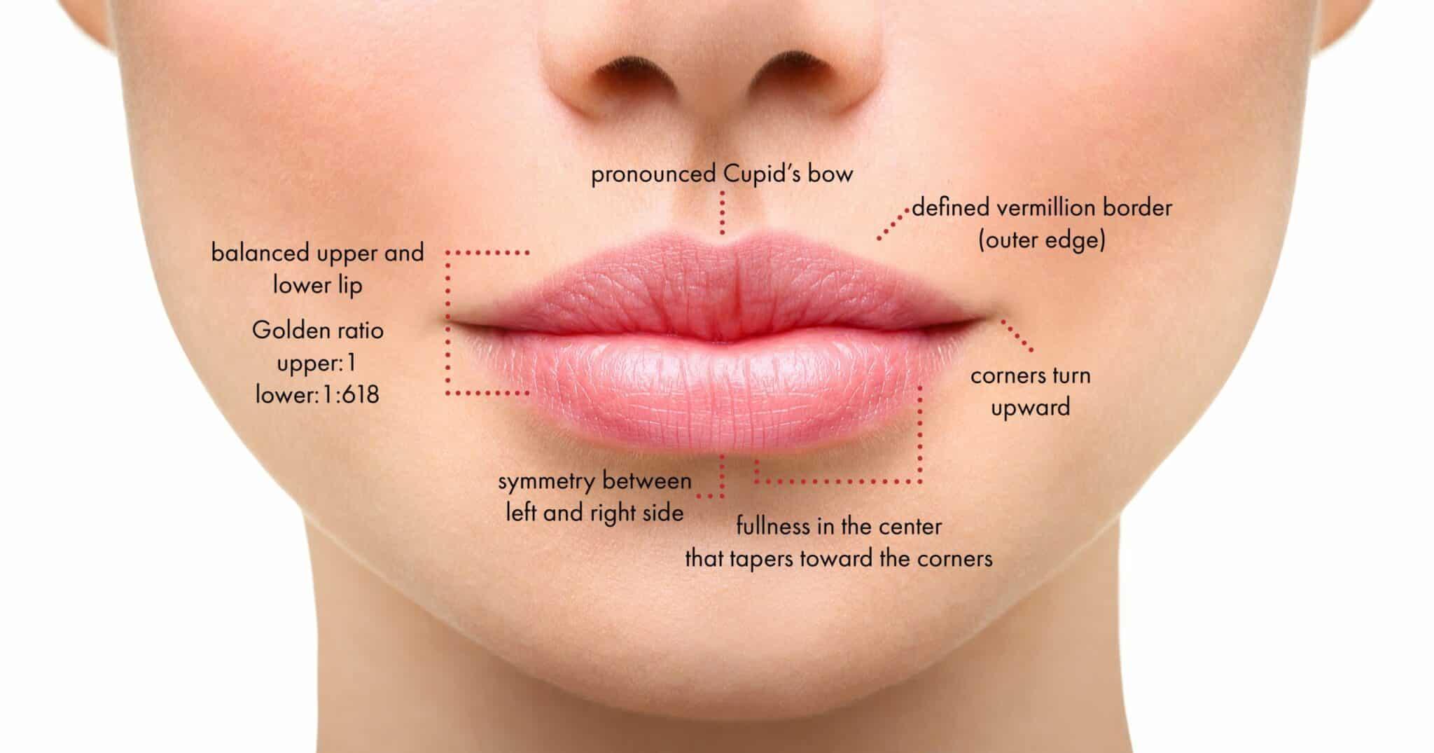 juvederm facial filler injectable diagram in new york