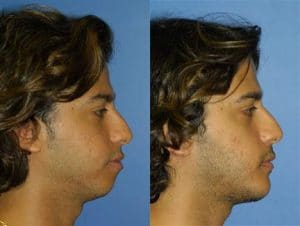 chin implant before and after results in new york