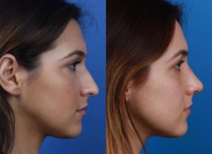 before and after of a rhinoplasty in new york