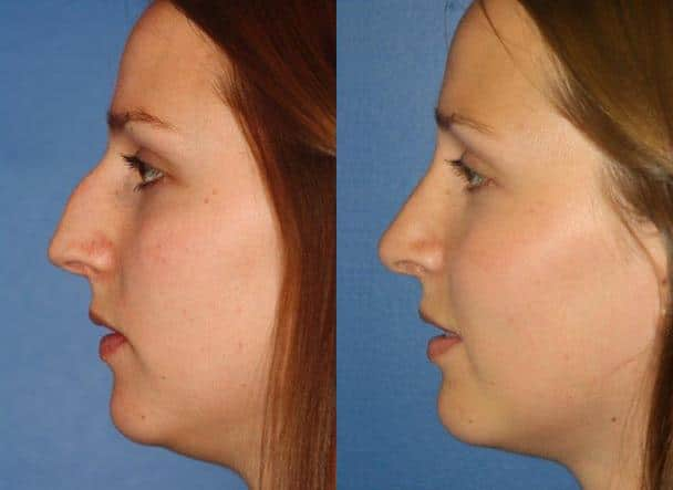 before and after of a female rhinoplasty in new york