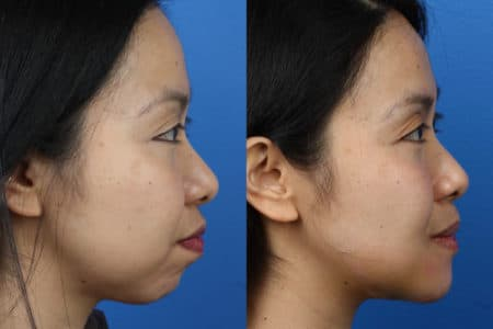 Chin Implant to Augment Chin by Dr. Miller