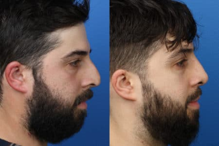 Rhinoplasty to correct nasal bridge and improve facial profile by Dr. Miller