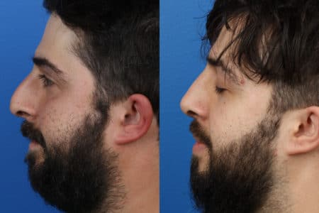 Rhinoplasty to remove a bump from the nasal bridge and enhance the facial profile by Dr. Miller.