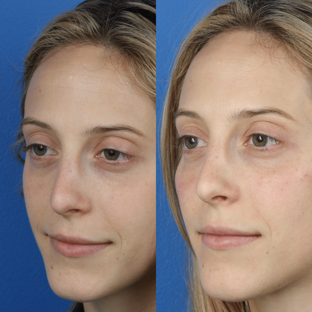 liquid facelift by Dr. Philip Miller in New York
