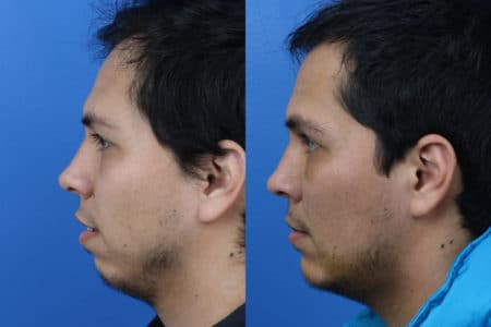 Chin Implant to Augment Chin of a Male Patient by Dr. Miller