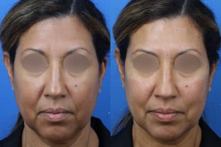 Filler to Augment the Cheeks of a Female Patient by Dr. Miller
