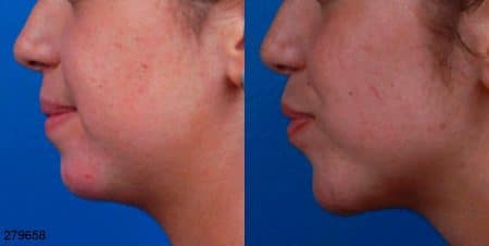 jaw reduction and facial contouring before after in new york