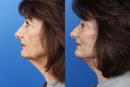 Facelift, neck lift, and dermabrasion to enhance the appearance of a female patient by Dr. Miller.