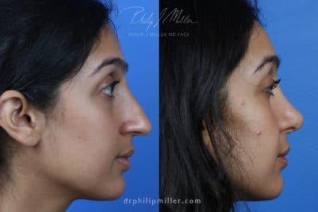 Rhinoplasty to Correct the Nasal Bridge and Tip of a Female Patient by Dr. Miller