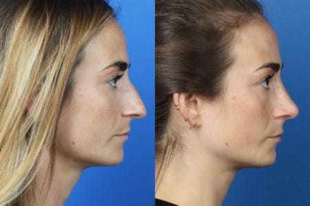 Rhinoplasty to Correct Nasal Bridge and Tip of a Female Patient by Dr. Miller