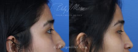 Rhinoplasty to Correct the Nasal Bridge of a Female Patient by Dr. Miller