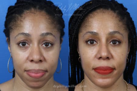 Rhinoplasty Upper Blepharoplasty Chin Implant and Fat Grafting for Facial Contouring of a Female Patient by Dr. Miller