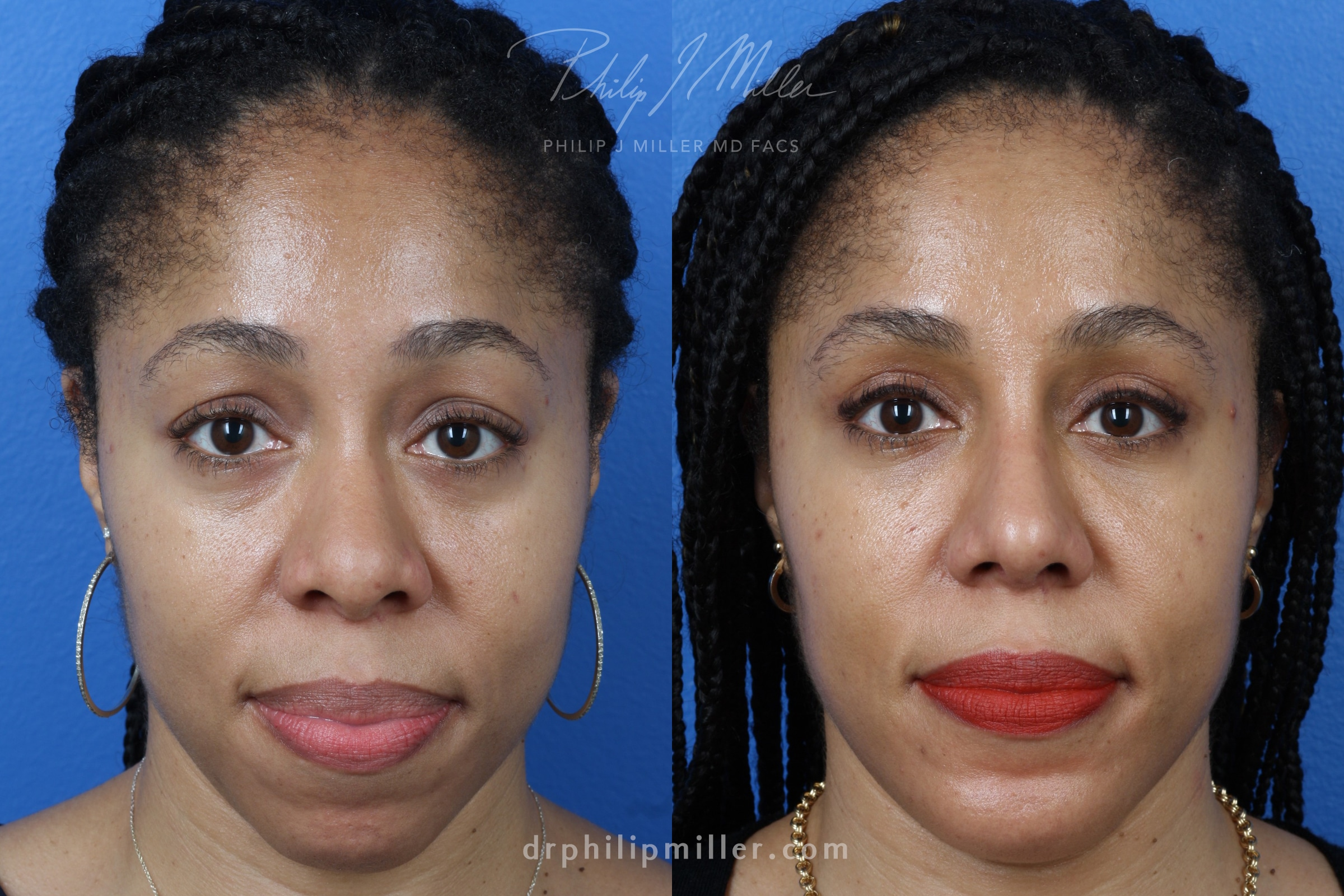 Rhinoplasty, upper blepharoplasty, chin implant, and fat grafting for facial contouring of a female patient by Dr. Miller. Treatments bring facial features in proportion to improve the facial contour.