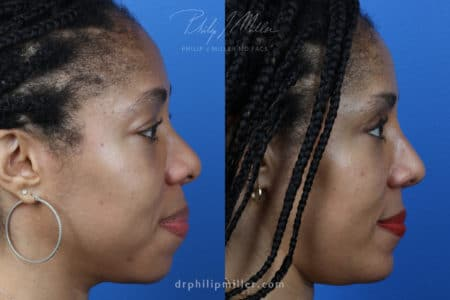 Rhinoplasty, Upper Blepharoplasty, Chin Implant, Fat Injections for Facial Contouring on a Female Patient by Dr. Miller.