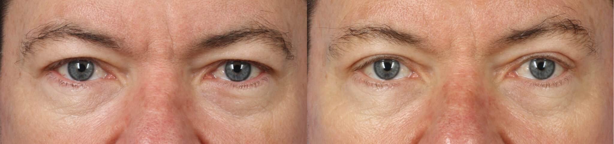 blepharoplasty new york eye surgery