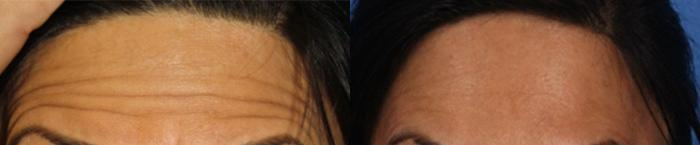 before and after of botox injections to treat wrinkles in the forehead