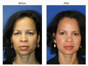 before and after of a forehead lift in new york city
