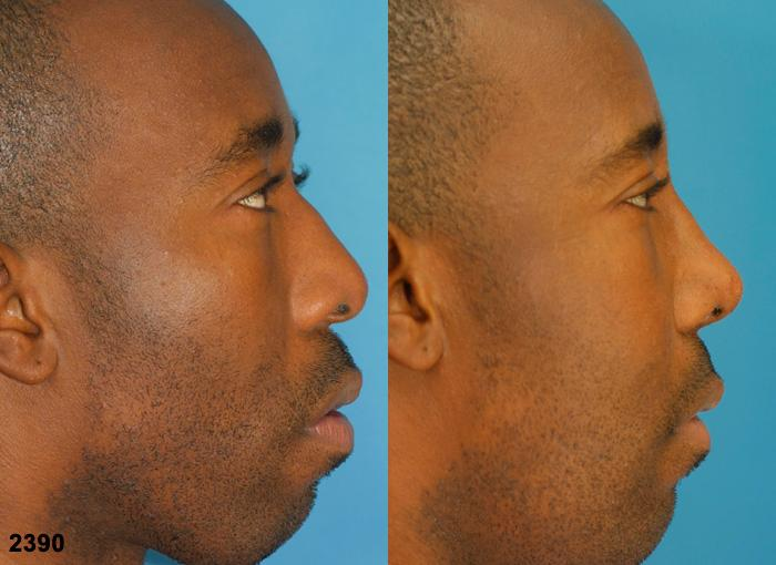 before and after of an ethnic rhinoplasty in new york