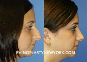 before and after of teenage rhinoplasty in new york