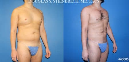 Body banking with liposuction to sculpt midsection and buttocks by Dr. Steinbrech