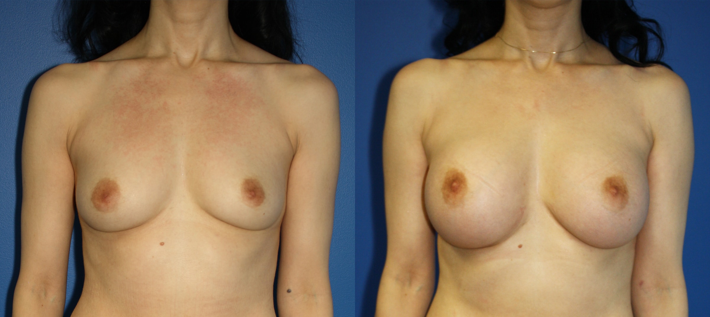 Breast implants to increase the size of the breasts by Dr. Steinbrech. After surgery, breasts are larger, rounder and lifted.