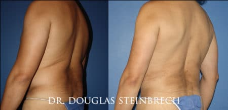 Torso tuck to reduce excess fat and sculpt the back and waistline by Dr. Steinbrech
