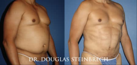 Torso tuck to reduce excess fat and sculpt the midsection by Dr. Steinbrech