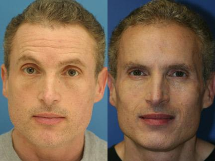 Botox injections to treat forehead wrinkles in a male patient by Dr. Miller.