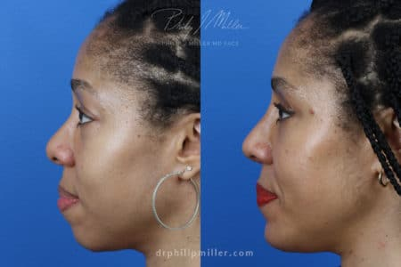 Rhinoplasty, upper blepharoplasty, chin implant, and fat grafting for facial contouring of a female patient by Dr. Miller.