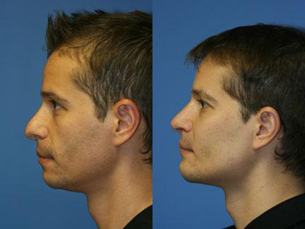 Cheek, jaw, and chin implants to augment the mid and lower face of a male patient by Dr. Miller