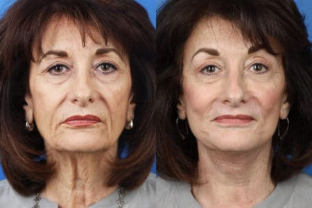 Facelift, neck lift, dermabrasion and earlobe repair to enhance the appearance of a female patient by Dr. Miller.