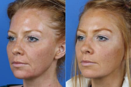 Micro Lift to address skin laxity and other early signs of aging in a female patient by Dr. Miller