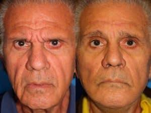 facelift patient in new york