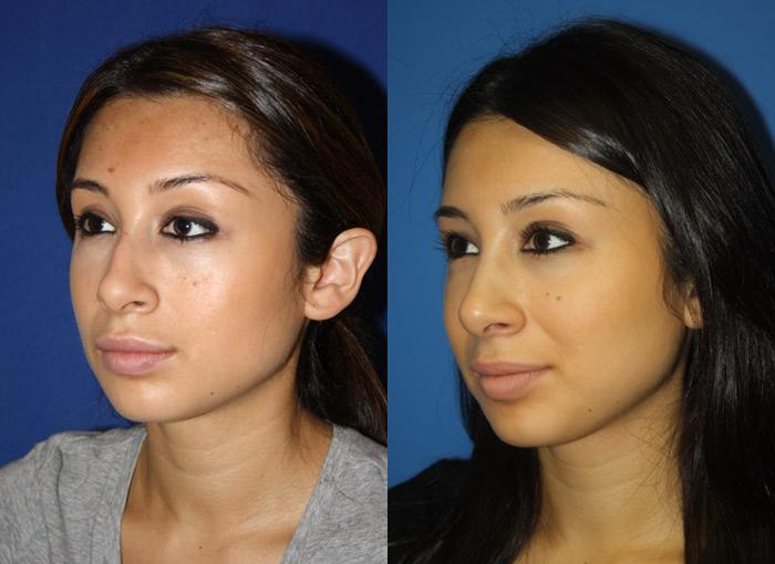 Female otoplasty patient in new york