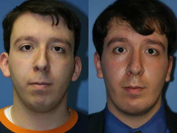 Male otoplasty patient in New York