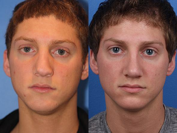 A before and after of a male revision rhinoplasty surgery in new york