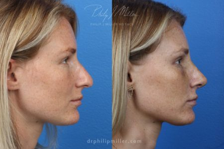 Rhinoplasty to Correct the Nasal Bridge by Dr. Miller