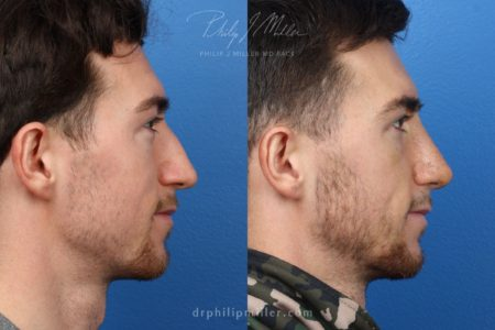 Rhinoplasty to Straighten the Bridge of a Male Patient by Dr. Miller