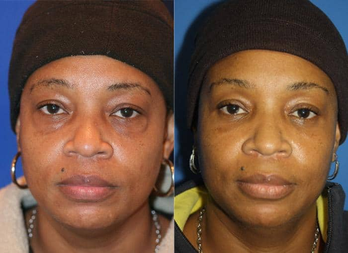 before and after of a patient who received a blepharoplasty in new york