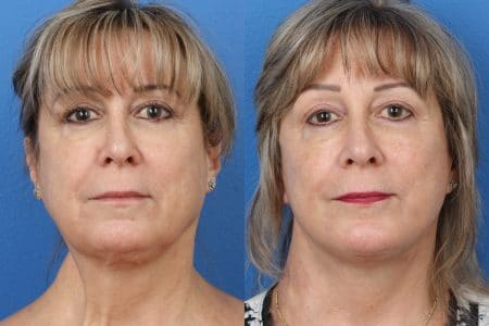 facelift before and after in new york