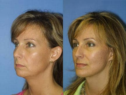 facelift patient's plastic surgery results in new york, ny