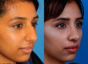 Female rhinoplasty patient in new york