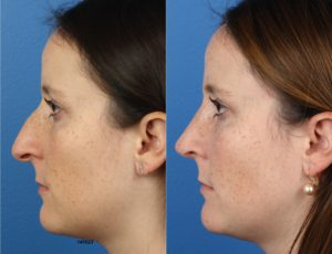 Female rhinoplasty patient's before and after results after undergoing surgery with Dr. Philip Miller in New York