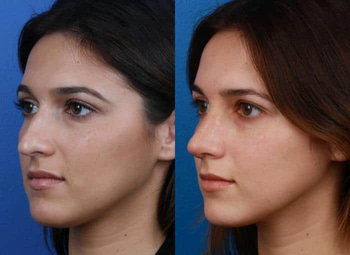 Before and After of a rhinoplasty patient who underwent surgery in Dr. Philip Miller's facial plastic surgery office in New York